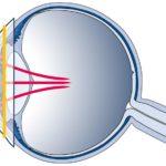 Health Wearables: Kontaktlinsen zur Überwachung der Gesundheit