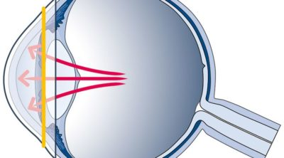 Kontaktlinse als Health Wearable